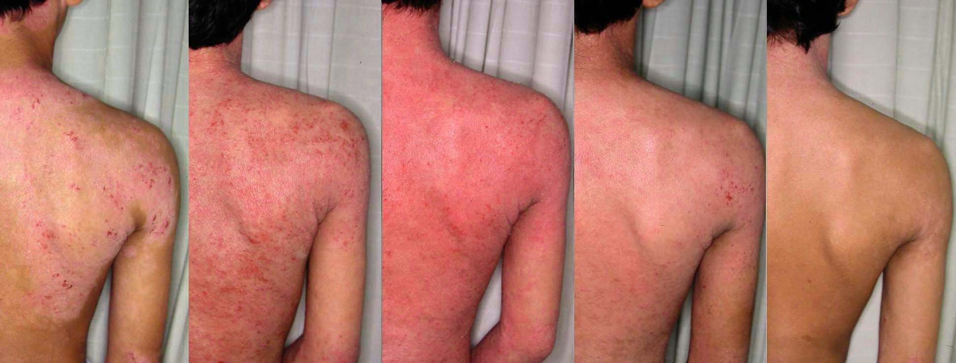 steroids back acne scars