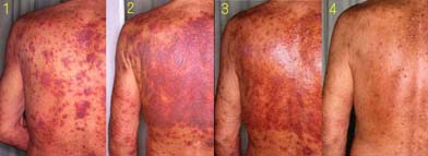 back acne due to steroids